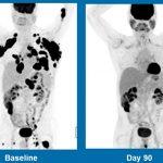 Ancora conferme sulla terapia genica in chiave anti-tumore