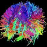 Ricercatori del Cnr scoprono limiti del neuroimaging su mappatura cervello