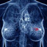 Nuove mutazioni e nuove mappe di rischio per il cancro