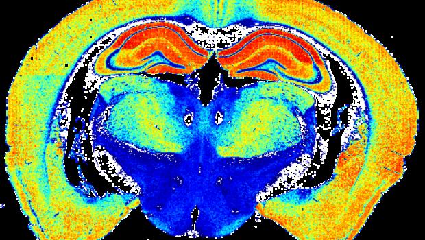 Il sinaptoma: la mappa del cervello mentre si attiva